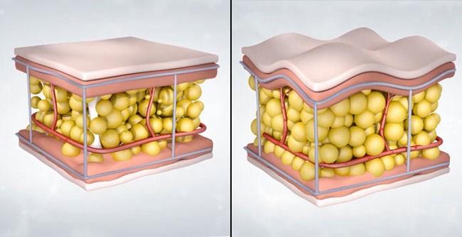 representação da gordura causando o tensionamento dos septos fibrosos