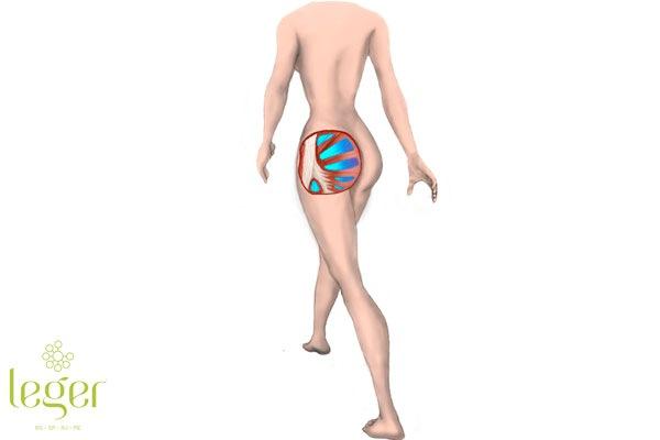 representação de preenchimento em leque realizado com bioplastia de glúteo