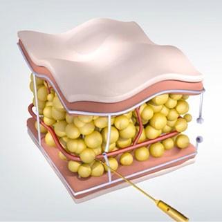 ilustração de agulha de ouro bisturizada para descolamento dos septos fibrosos que causam as celulites