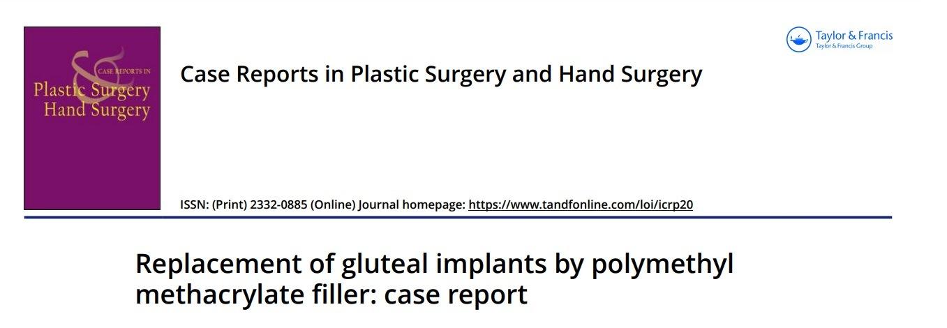 Artigo: Substituição de prótese de silicone por PMMA no glúteo