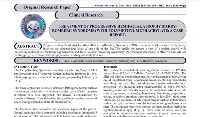 Abordagem inédita em tratamento da Síndrome de Parry Romberg